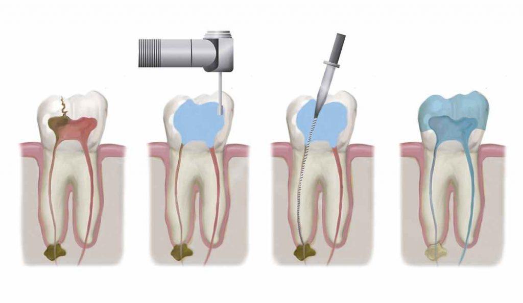 نحوه عصب کشی یا روت کانال دندان در چند مرحله