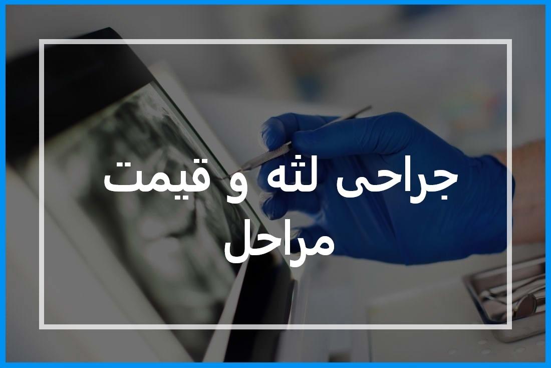 جراحی لثه هزینه و دندانپزشک برای جراحی لثه در تهران