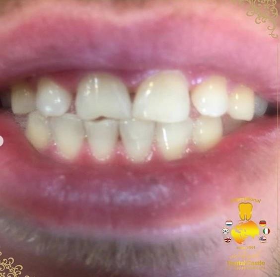 جرم گیری و بلیچینگ دندان