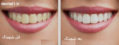 بلیچینگ قبل و بعد از سفید کردن دندان