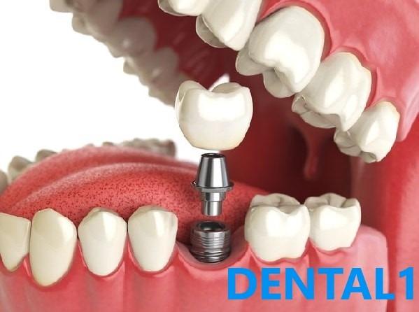 ایمپلنت در کلینیک دندانپزشکی سعادت اباد