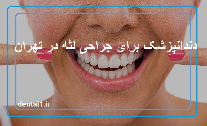 دندانپزشک برای جراحی لثه در تهران