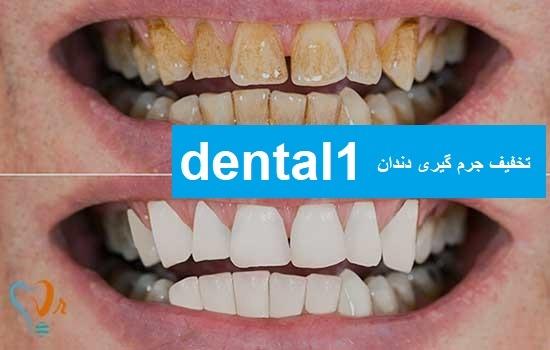 تخفیف جرم گیری دندان در تهران