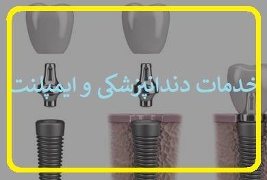 مطب دندانپزشکی و خدمات دندانپزشکی تهرانپارس