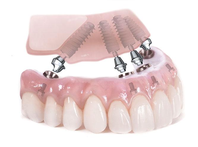 شبیه ساز ایمپلنت دندان