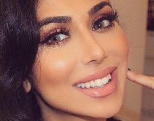 خانومی با لبخند زیبا بعد از سفید شدن دندان ها