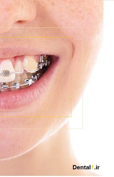همه چیز درباره ارتودنسی دندان