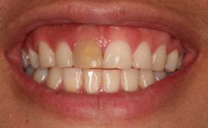 یکی از دندان ها پوسیده شده و رنگش تغییر کرده