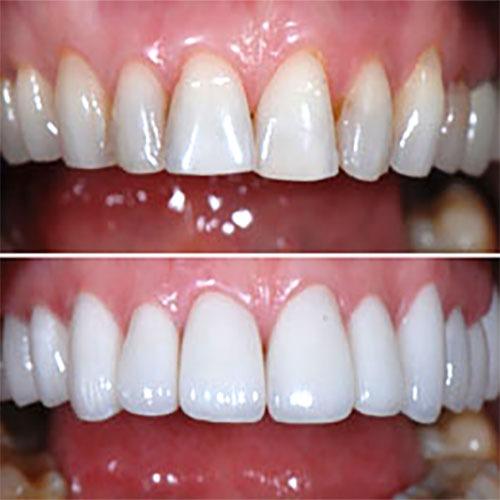 عکس قبل و بعد از لمینت دندان