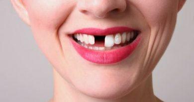 بعد کشیدن دندان