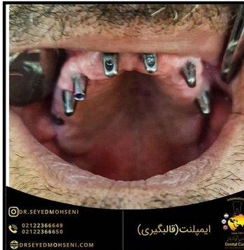 قالبگیری ایمپلنت دندان در تهران دتر سید محسنی