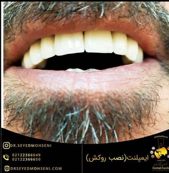 ایمپلنت دندان عکس بد از انجام دکتر سید محسنی در تهران