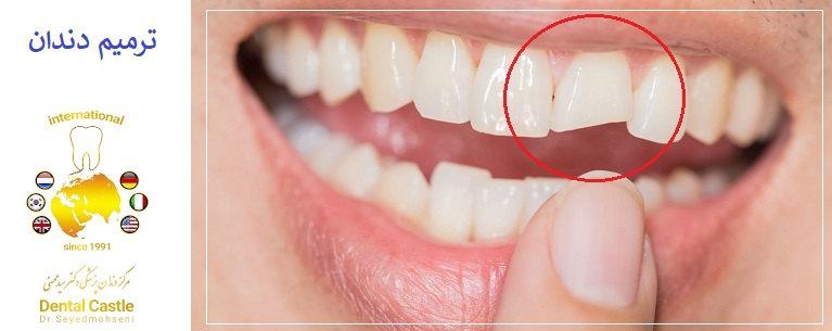 ترمیم دندان در شرق تهران