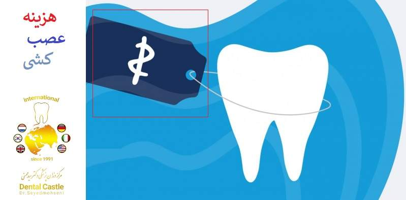 چرا دندان من نیاز به روت کانال دارد؟