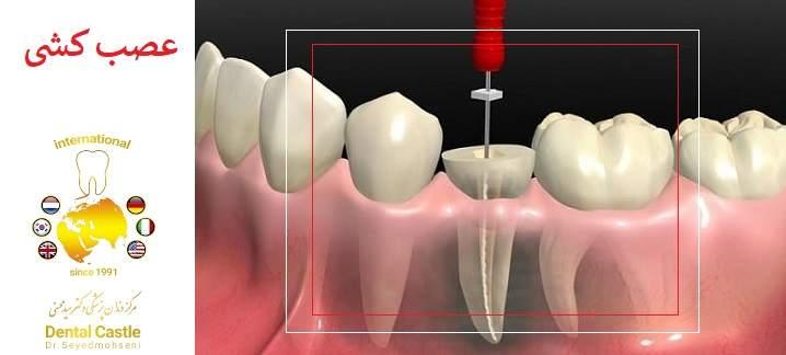 در حین درمان ریشه دندان چه اتفاقاتی می افتد؟