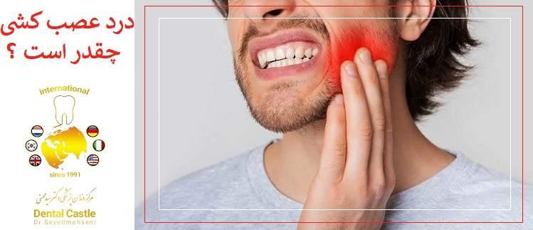 سوال : آیا درمان ریشه دندان (عصب کشی) دردناک است؟