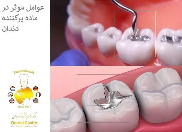 عوامل موثر در ماده پرکننده دندان