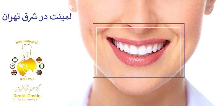 لمینت دندان در شرق تهران