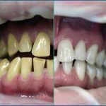 بلیچینگ یا جرم گیری دندان در کلینیک دندانپزشکی تهرانپارس
