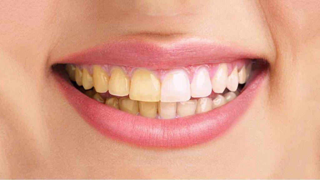 عکس دندان زرد و سفید قبل و بعد از بلیچینگ