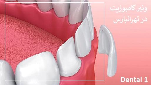 ونیر کامپوزیت دندان در تهرانپارس