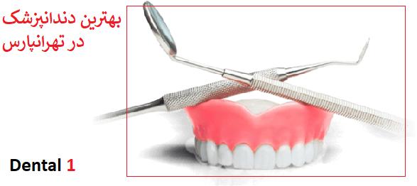 بهترین دندانپزشک در تهرانپارس