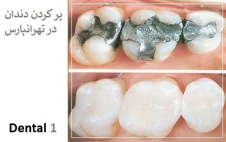 پر کردن دندان در تهرانپارس
