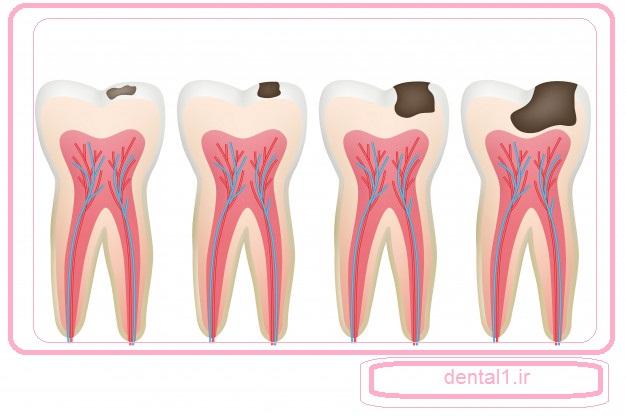 دندان پوسیده در کلینیک دندانپزشکی در شمال تهران پر میشود