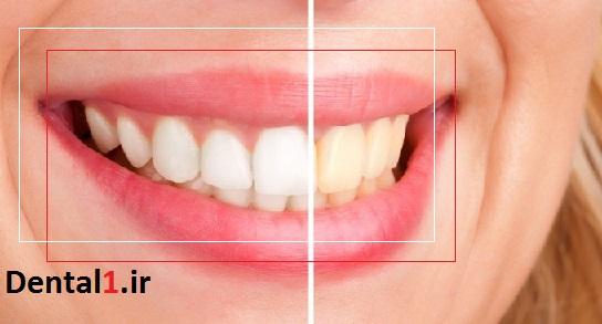اگر از زردی دندانها خسته شده اید باید به کلینیک دندانپزشکی شبانه روزی غرب تهران مراجعه کنید