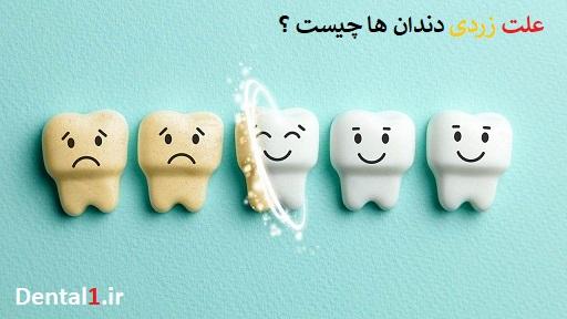 علت زرد شدن دندان ها چیست؟