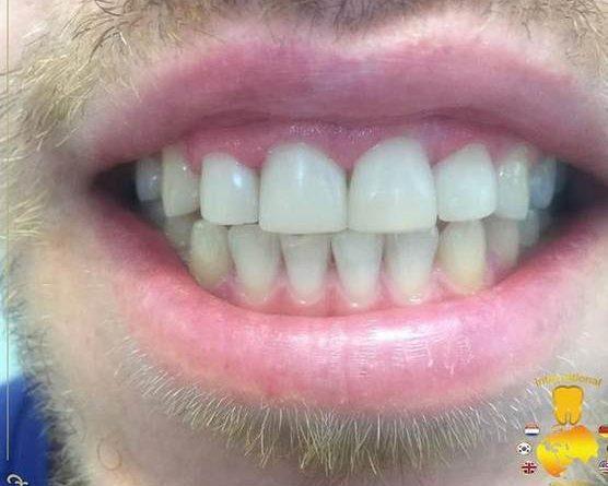 قبل سفید کردنم دندان