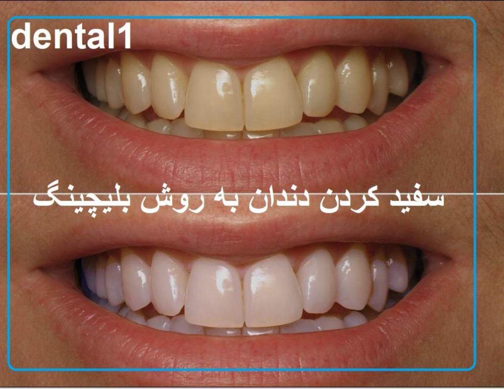 سفید کردن دندان با بلیچینگ در کلینیک دندانپزشکی سعادت اباد