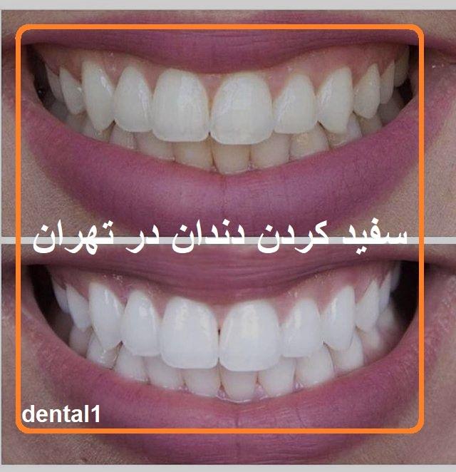 سفید کردن دندان در تهران