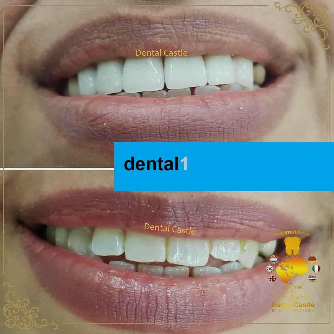 سفید کردن دندان به روش بلیچینگ دندان قبل و بعد از آن