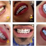 معرفی بهترین کلینیک دندانپزشکی سعادت آباد