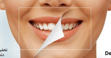 تخفیف بلیچینگ دندان در تهران