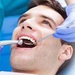 جرم گیری دندان و تفاوت آن با بلیچینگ دندان و لمینت