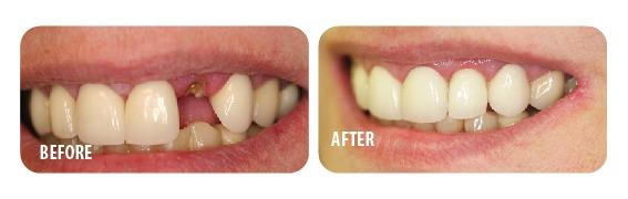 رفع فاصله بین دندانها