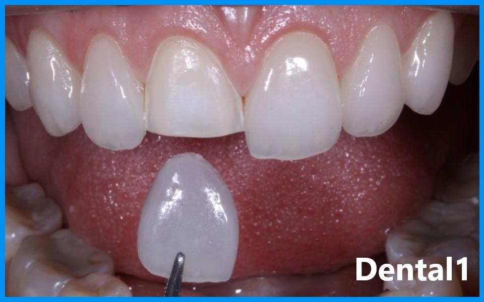دندان پزشک زیبایی