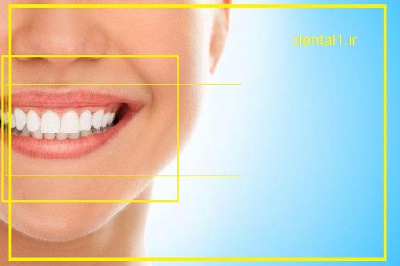 سلامت دندان را میتوانید در کلینیک دندان پزشکی سعادت آباد تجربه کنید.