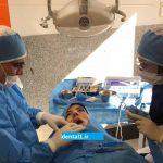 جراحی لثه ؛ در چه موقعی  به جراحی لثه نیاز هست؟