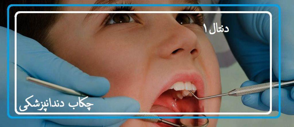 چکاب و دندانپزشکی رایگان