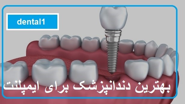 بهترین دندانپزشک برای ایمپلنت