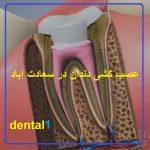 تخفیف عصب کشی دندان در سعادت آباد
