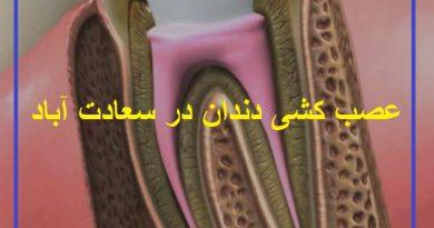 عصب کشی دندان در سعادت آباد