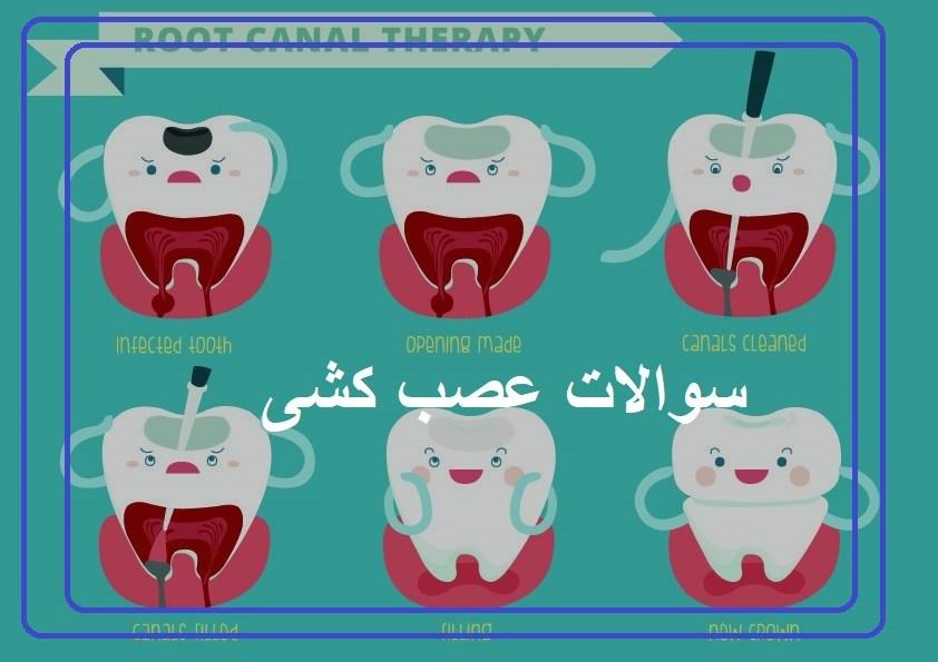 سوالات عصب کشی دندان
