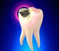 کرم خوردگی دندا از مشکلات رایج دندان