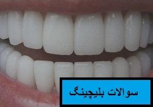 سوالات متداول دندانپزشکی
