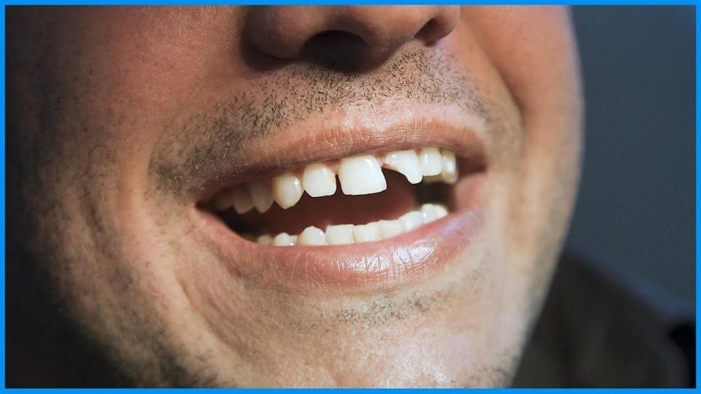 ترمیم دندان شکسته