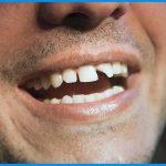 ترمیم دندان شکسته و روش های آن